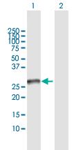 Western blot - Anti-Syntaxin 1a antibody (ab118359)
