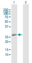 Western blot - Anti-HLA DRB5 antibody (ab118360)