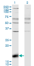 Western blot - Anti-Z DNA binding protein antibody (ab118361)