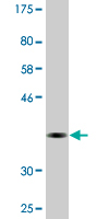 Western blot - Anti-CDYL  antibody (ab118362)
