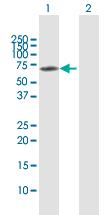 Western blot - Anti-CTNNA3 antibody (ab118363)