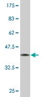 Western blot - Anti-ZHX3 antibody [1D9] (ab118364)