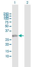 Western blot - Anti-Syntaxin 2 antibody (ab118366)