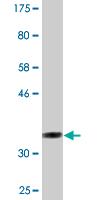 Western blot - Anti-LIMD1 antibody (ab118367)