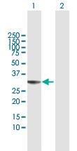 Western blot - Anti-THAP1 antibody (ab118368)