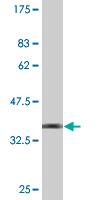 Western blot - Anti-ZNF192 antibody (ab118369)