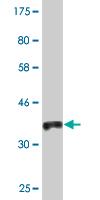 Western blot - Anti-MCCC2 antibody (ab118370)