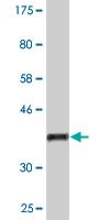Western blot - Anti-GNPNAT1 antibody (ab118372)