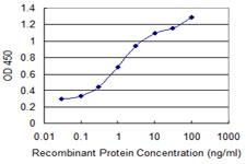 Sandwich ELISA - Anti-GNPNAT1 antibody (ab118372)