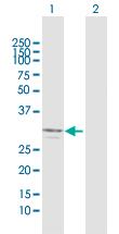 Western blot - Anti-Ficolin 2 antibody (ab118374)