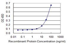 Sandwich ELISA - Anti-MDA5  antibody (ab118377)