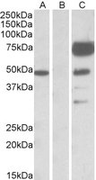 Western blot - Anti-Angiopoietin 1 antibody (ab118380)