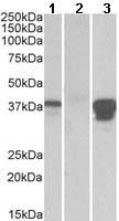 Western blot - Anti-BOB1 antibody (ab118389)