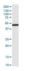 Western blot - Anti-Tropomodulin 3 antibody (ab118391)