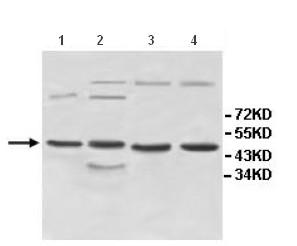 Western blot - Anti-INPP5A antibody (ab118418)