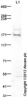 Western blot - Anti-TDRD9 antibody (ab118427)