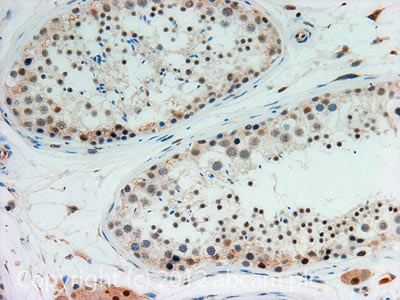 Immunohistochemistry (Formalin/PFA-fixed paraffin-embedded sections) - Anti-TDRD9 antibody (ab118427)