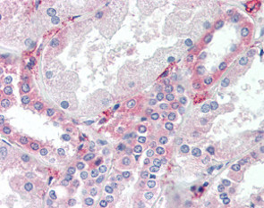 Immunohistochemistry (Formalin/PFA-fixed paraffin-embedded sections) - Anti-SYVN1 antibody (ab118483)
