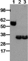 Western blot - Anti-EBI3 antibody [DNT27] (ab118500)