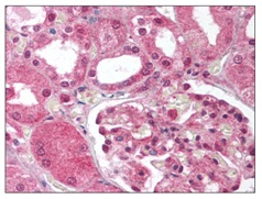 Immunohistochemistry (Formalin/PFA-fixed paraffin-embedded sections) - Anti-MMP1 antibody (ab118529)