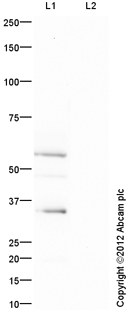 Western blot - Anti-SLC22A1 antibody (ab118539)
