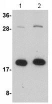 Western blot - Anti-zcrb1 antibody (ab118552)