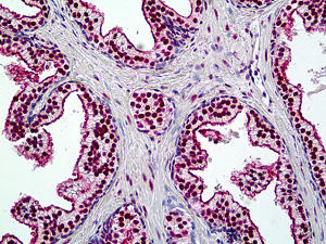 Immunohistochemistry (Formalin/PFA-fixed paraffin-embedded sections) - Anti-BRG1 antibody (ab118558)