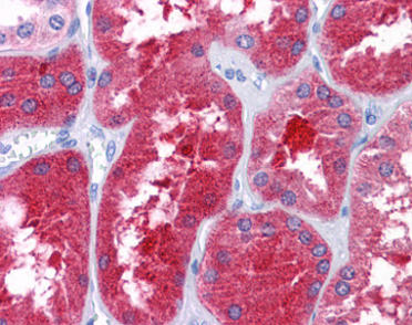 Immunohistochemistry (Formalin/PFA-fixed paraffin-embedded sections) - Anti-REEP3 antibody (ab118559)