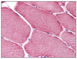 Immunohistochemistry (Formalin/PFA-fixed paraffin-embedded sections) - Anti-PPAPDC3 antibody (ab118576)