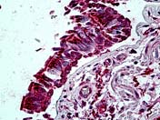 Immunohistochemistry (Formalin/PFA-fixed paraffin-embedded sections) - Anti-CENPA antibody (ab118588)