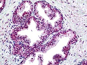 Immunohistochemistry (Formalin/PFA-fixed paraffin-embedded sections) - Anti-Suppressor of Fused antibody (ab118596)