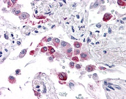 Immunohistochemistry (Formalin/PFA-fixed paraffin-embedded sections) - Anti-EFHD1 antibody (ab118599)