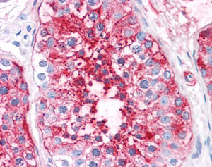 Immunohistochemistry (Formalin/PFA-fixed paraffin-embedded sections) - Anti-ADAM20 antibody (ab118612)