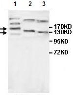 Western blot - Anti-MAGI3 antibody (ab118615)
