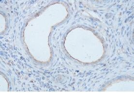 Immunohistochemistry (Formalin/PFA-fixed paraffin-embedded sections) - Anti-IL8 antibody (ab118617)