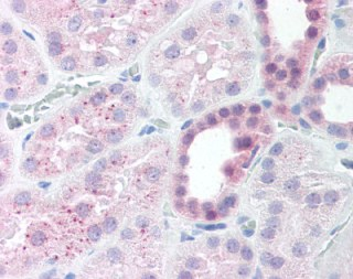Immunohistochemistry (Formalin/PFA-fixed paraffin-embedded sections) - Anti-MEK4 (phospho S80) antibody (ab118633)