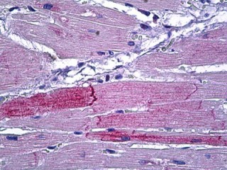 Immunohistochemistry (Formalin/PFA-fixed paraffin-embedded sections) - Anti-Protein Kinase D2 antibody (ab118639)