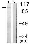 Western blot - Anti-Protein Kinase D2 antibody (ab118639)