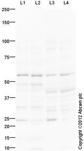 Western blot - Anti-TRIM72 antibody (ab118651)