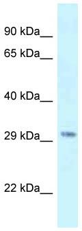 Western blot - Anti-SUV420h1 antibody (ab118659)