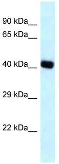 Western blot - Anti-BCAT2 antibody (ab118661)