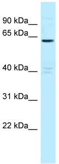 Western blot - Anti-MTMR6 antibody (ab118663)