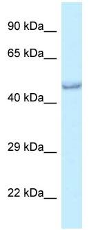 Western blot - Anti-PRMT6 antibody (ab118669)