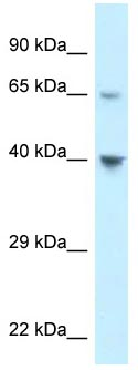 Western blot - Anti-CCR11 antibody (ab118670)