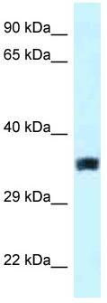 Western blot - Anti-SLC25A33 antibody (ab118674)