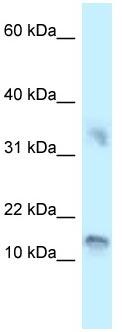 Western blot - Anti-UTS2D antibody (ab118675)