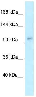 Western blot - Anti-TTC10 antibody (ab118677)