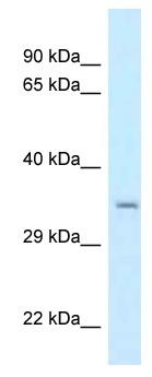 Western blot - Anti-CSTP1 antibody (ab118679)