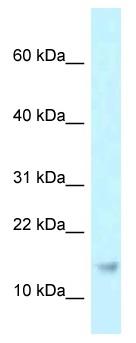Western blot - Anti-RPP21 antibody (ab118681)