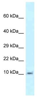 Western blot - Anti-MRPL55  antibody (ab118684)